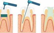 Мышьяк в стоматологии: что должен знать каждый пациент
