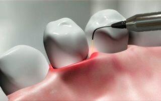 Безболезненное и эффективное лечение пародонтита лазером